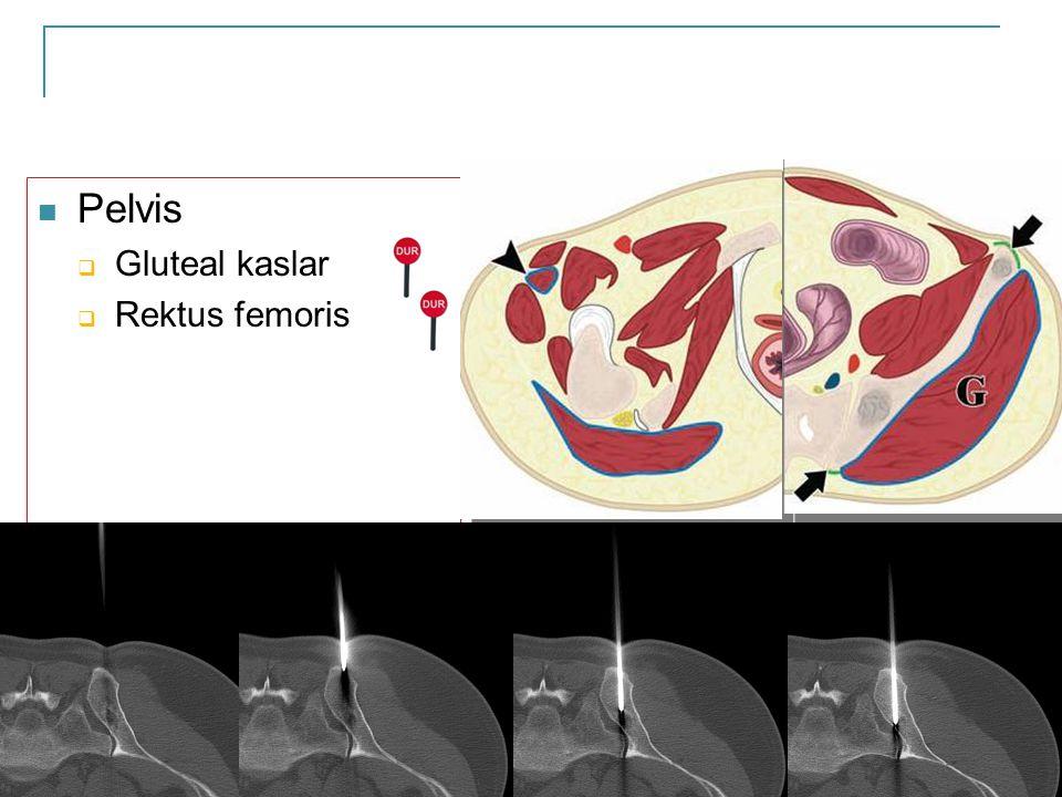 Pelvis Gluteal kaslar Rektus femoris