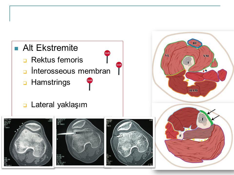 Alt Ekstremite Rektus femoris İnterosseous membran Hamstrings