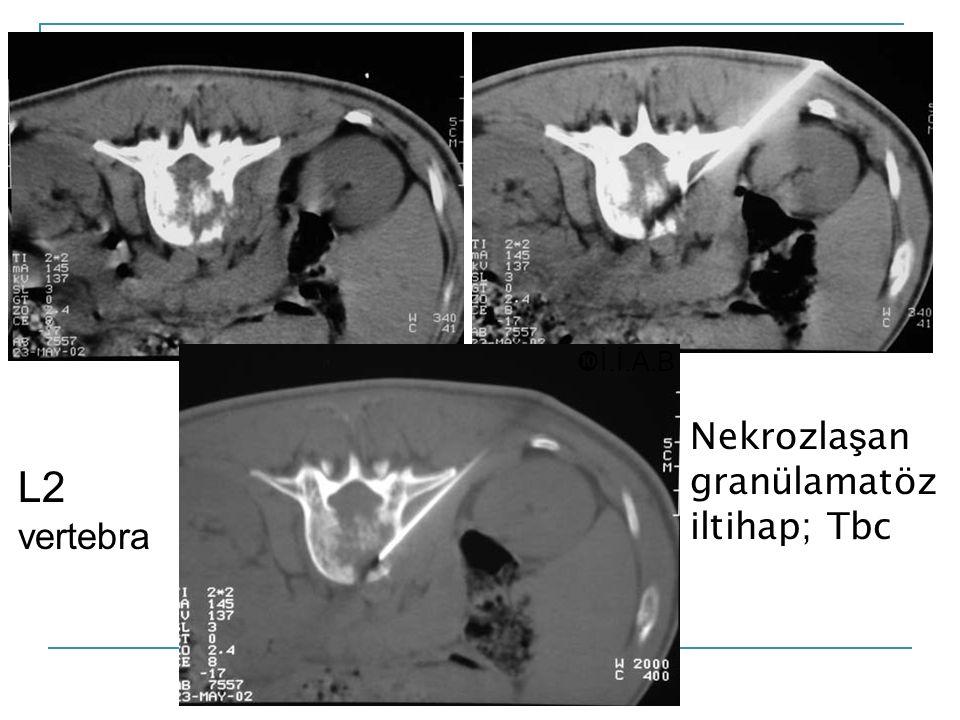 İ.İ.A.B Nekrozlaşan granülamatöz iltihap; Tbc L2 vertebra