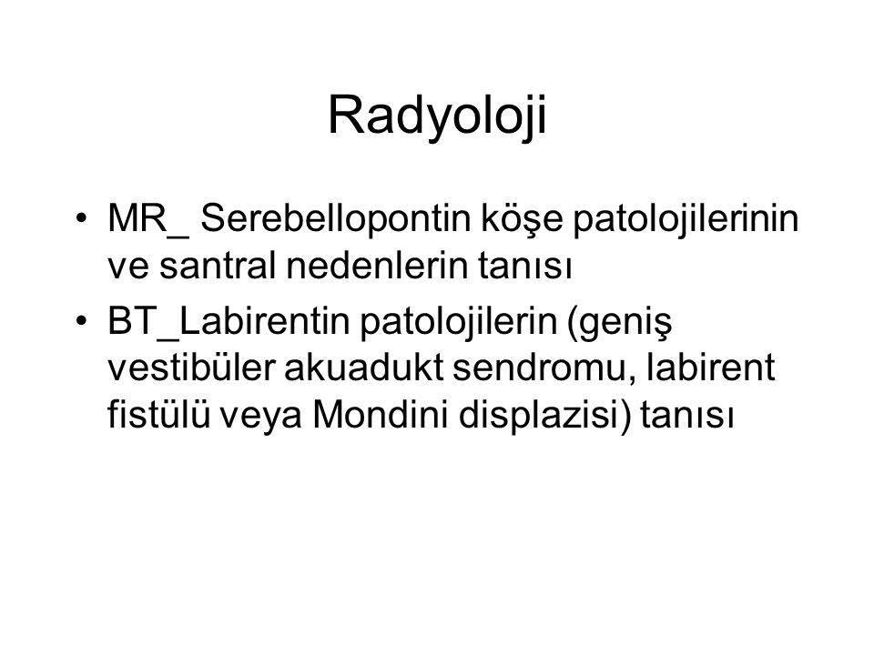 Radyoloji MR_ Serebellopontin köşe patolojilerinin ve santral nedenlerin tanısı.