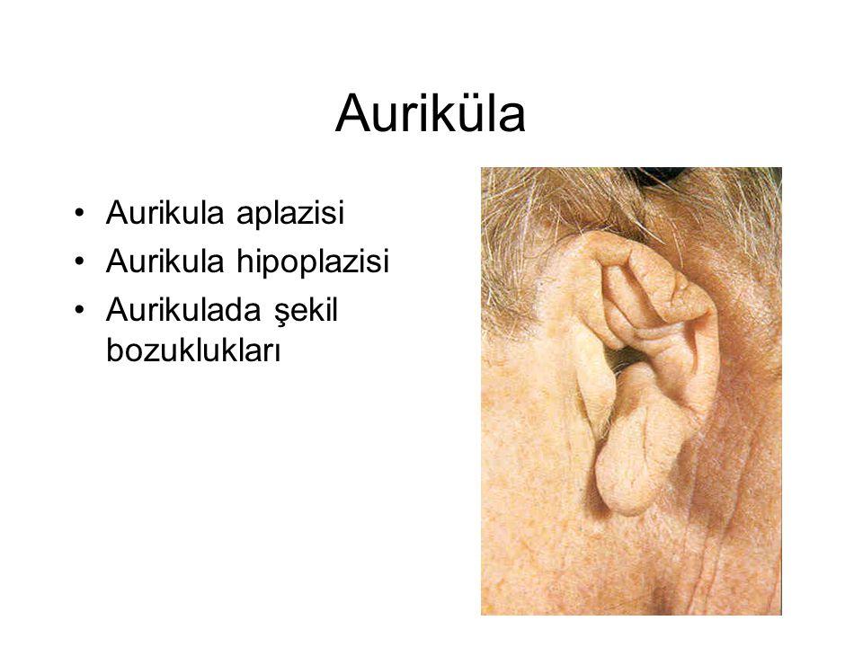 Auriküla Aurikula aplazisi Aurikula hipoplazisi