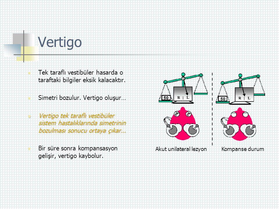 Vertigo Tek taraflı vestibüler hasarda o taraftaki bilgiler eksik kalacaktır. Simetri bozulur. Vertigo oluşur…