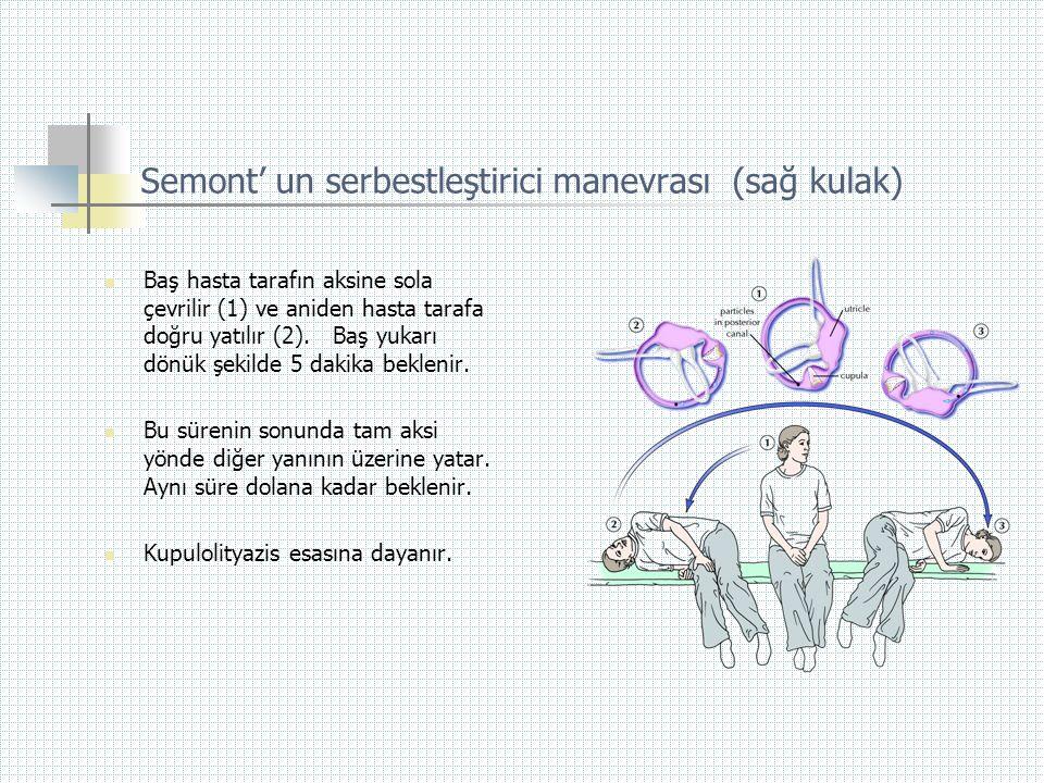 Semont' un serbestleştirici manevrası (sağ kulak)