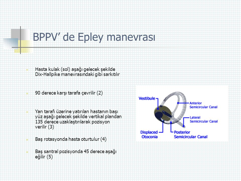 BPPV' de Epley manevrası