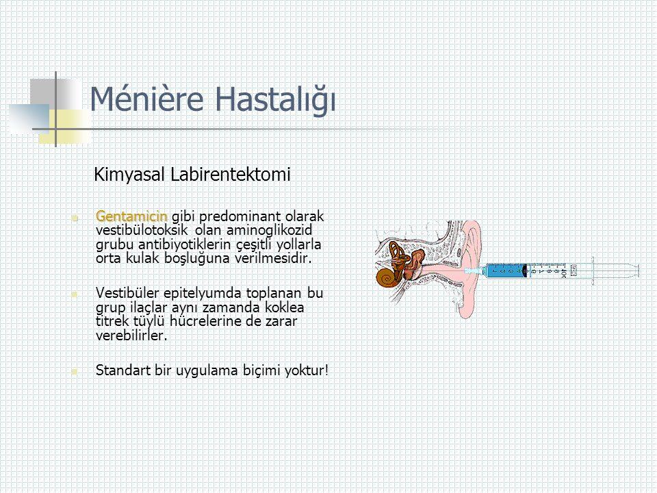 Ménière Hastalığı Kimyasal Labirentektomi