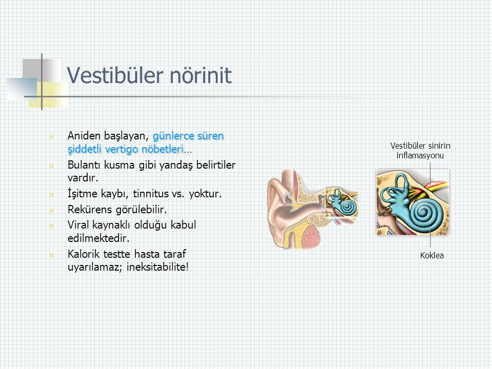 Vestibüler nörinit Aniden başlayan, günlerce süren şiddetli vertigo nöbetleri… Bulantı kusma gibi yandaş belirtiler vardır.