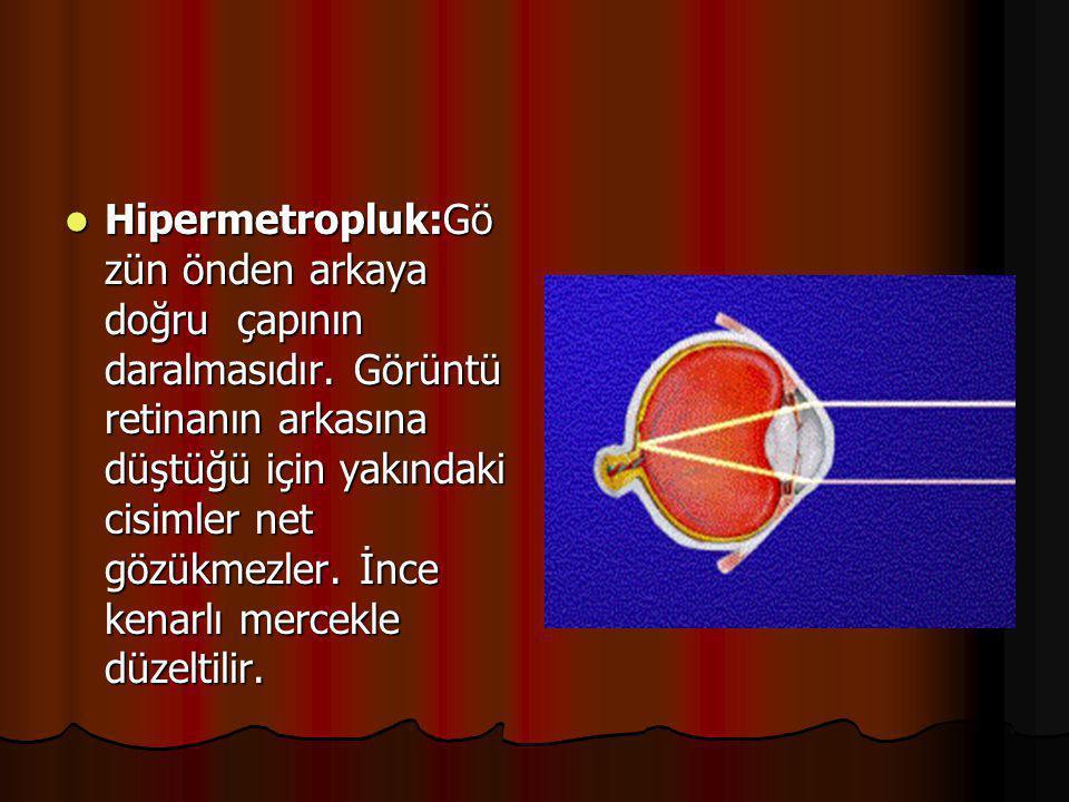 Hipermetropluk:Gözün önden arkaya doğru çapının daralmasıdır