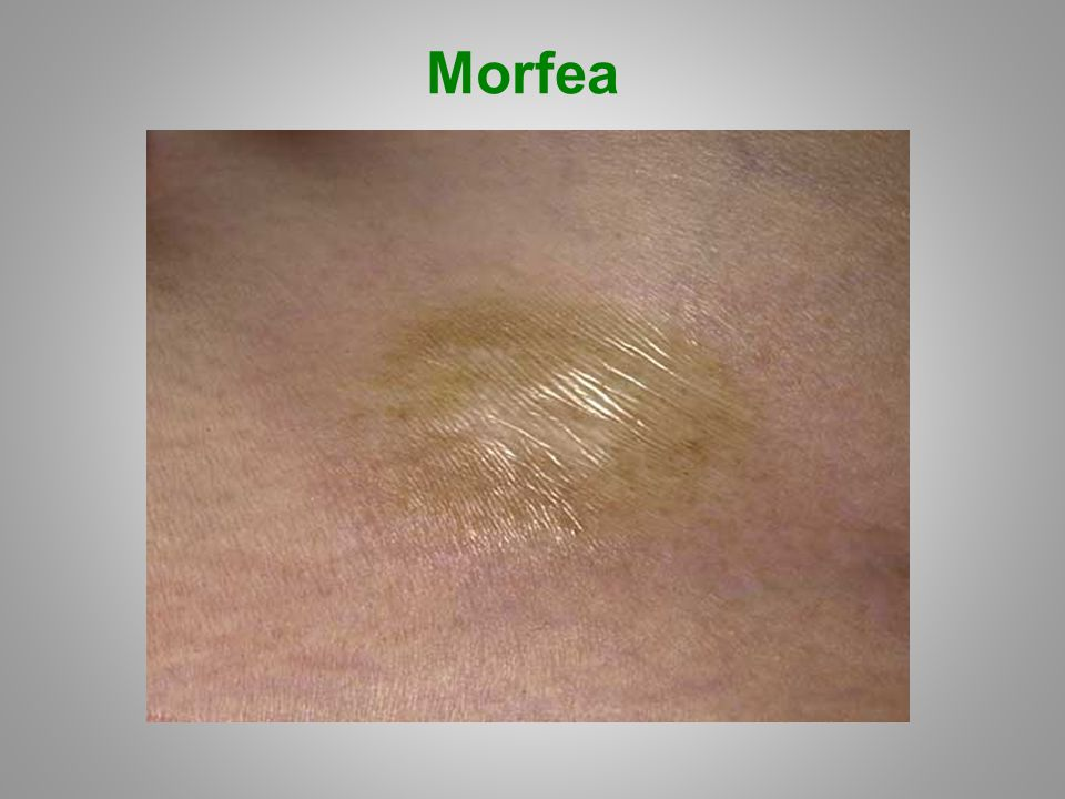Morfea