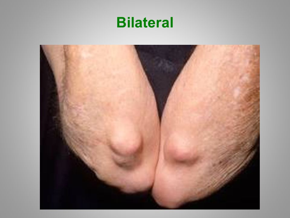 Bilateral