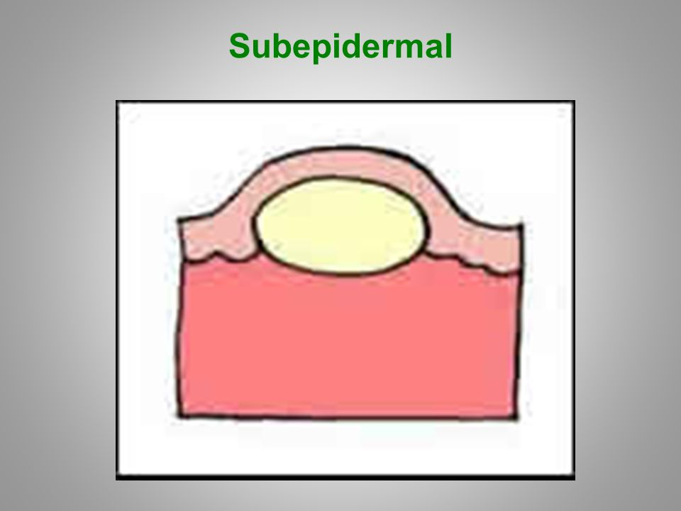 Subepidermal