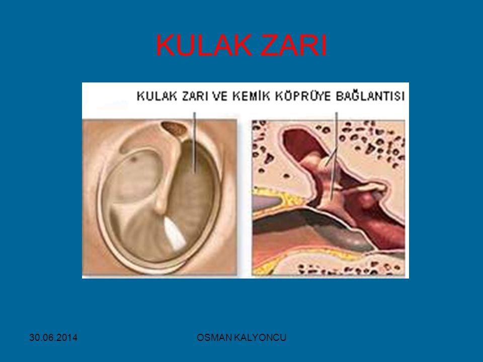 KULAK ZARI 03.04.2017 OSMAN KALYONCU