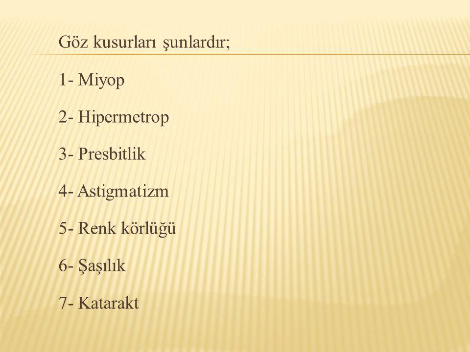 Göz kusurları şunlardır; 1- Miyop 2- Hipermetrop 3- Presbitlik 4- Astigmatizm 5- Renk körlüğü 6- Şaşılık 7- Katarakt