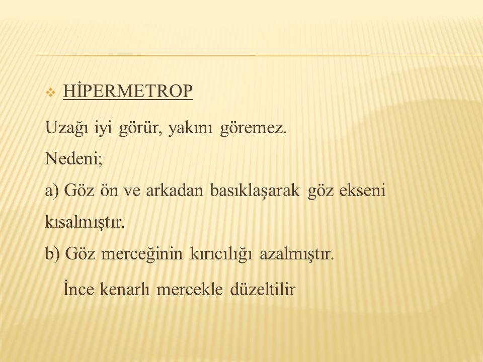 HİPERMETROP