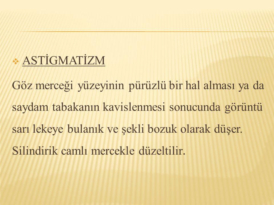 ASTİGMATİZM