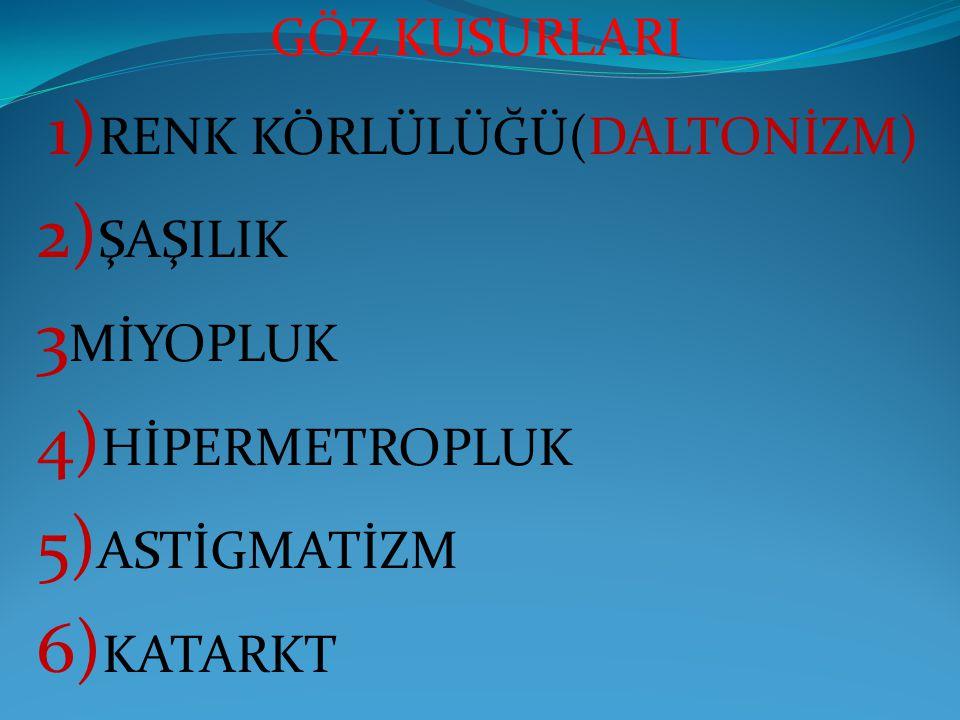 2)ŞAŞILIK 3MİYOPLUK 4)HİPERMETROPLUK 5)ASTİGMATİZM 6)KATARKT