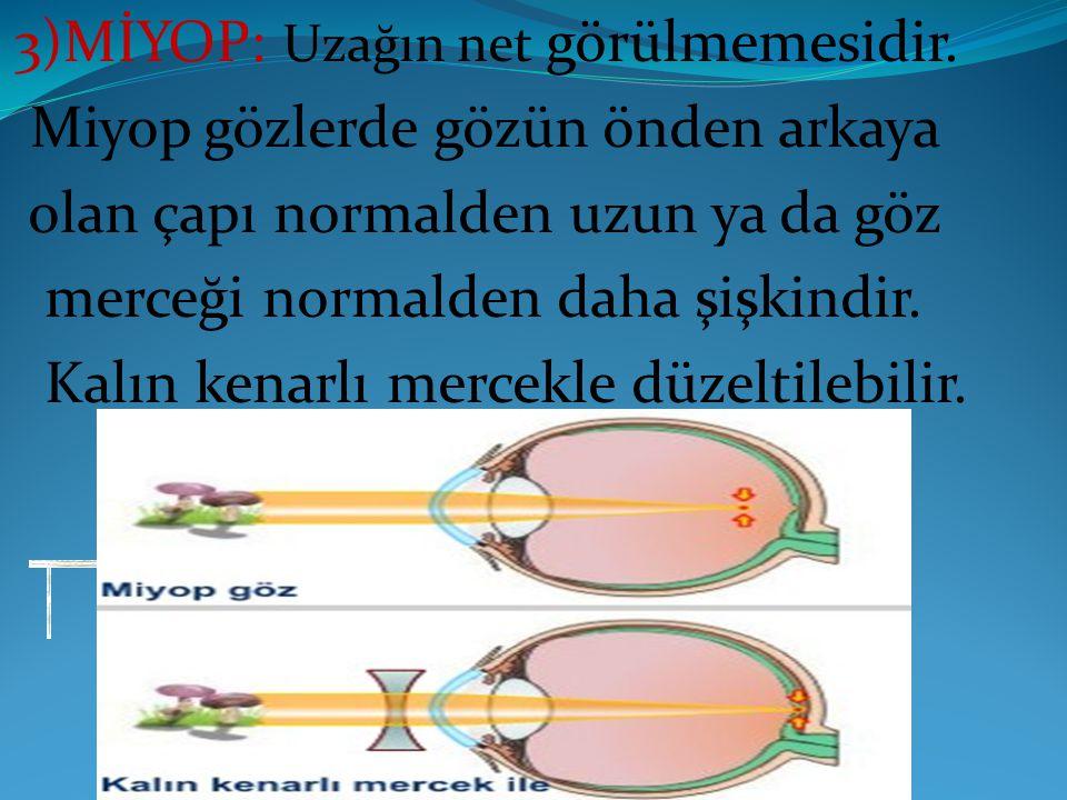 3)MİYOP: Uzağın net görülmemesidir.