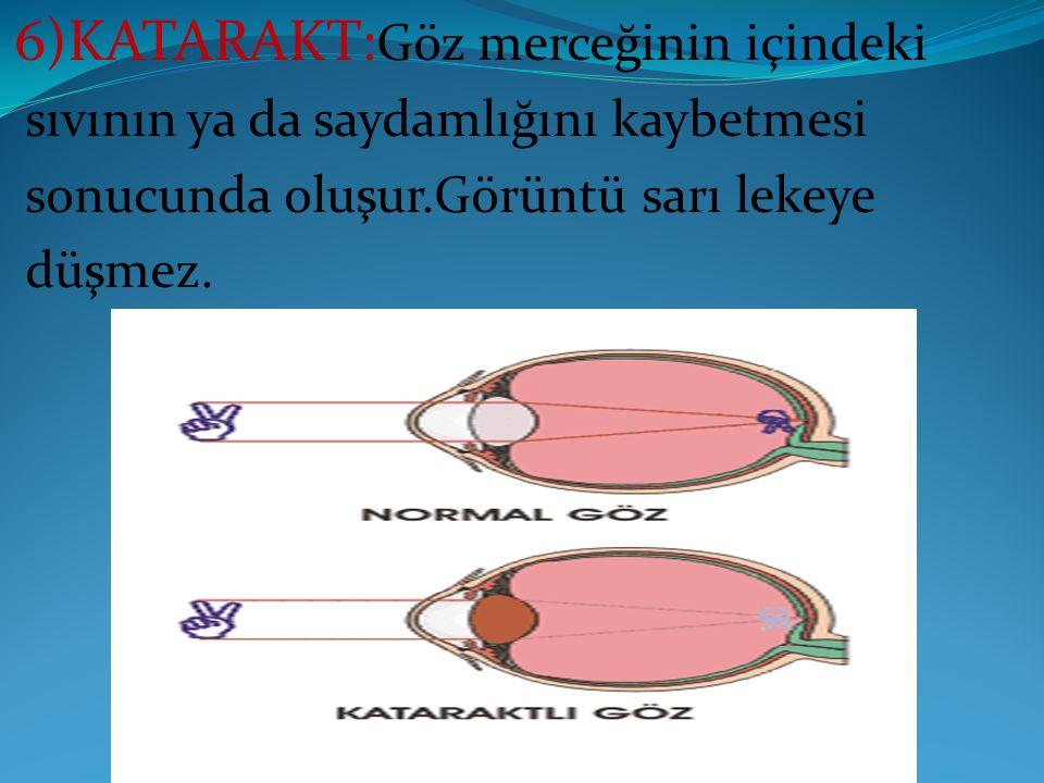 6)KATARAKT:Göz merceğinin içindeki