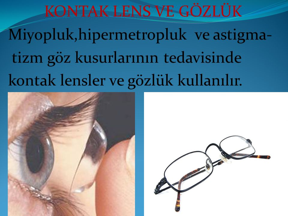 KONTAK LENS VE GÖZLÜK Miyopluk,hipermetropluk ve astigma- tizm göz kusurlarının tedavisinde.