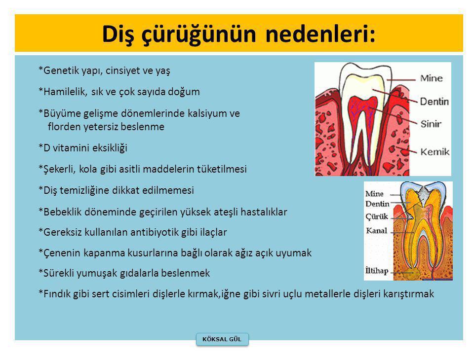 Diş çürüğünün nedenleri: