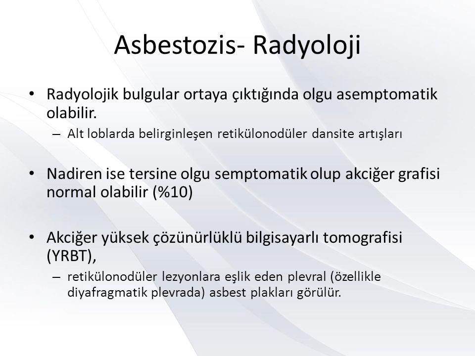Asbestozis- Radyoloji