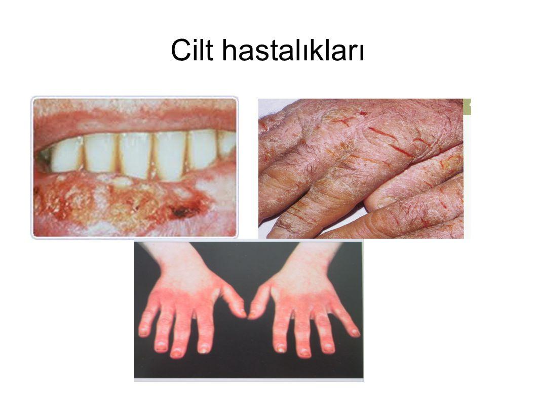 Cilt hastalıkları