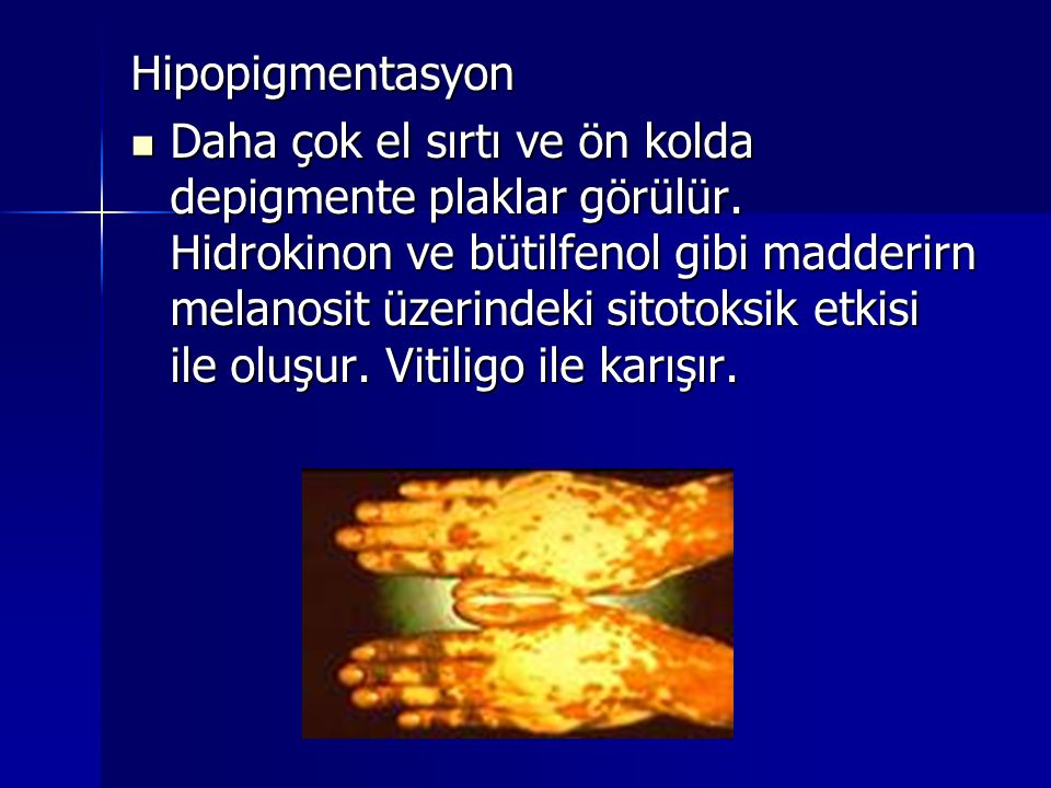 Hipopigmentasyon