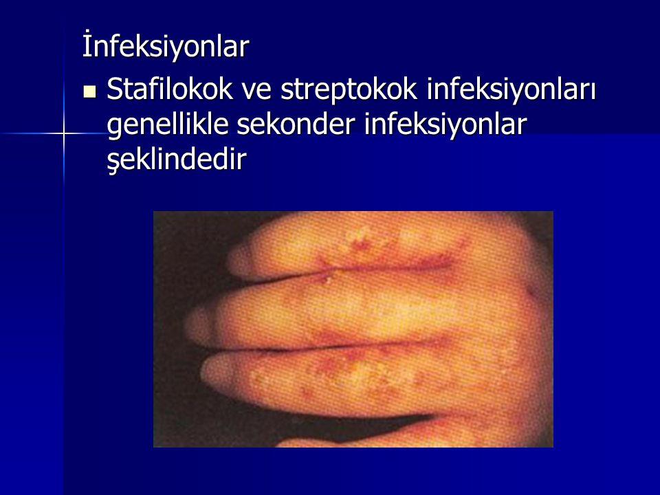 İnfeksiyonlar Stafilokok ve streptokok infeksiyonları genellikle sekonder infeksiyonlar şeklindedir
