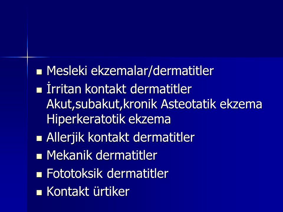 Mesleki ekzemalar/dermatitler