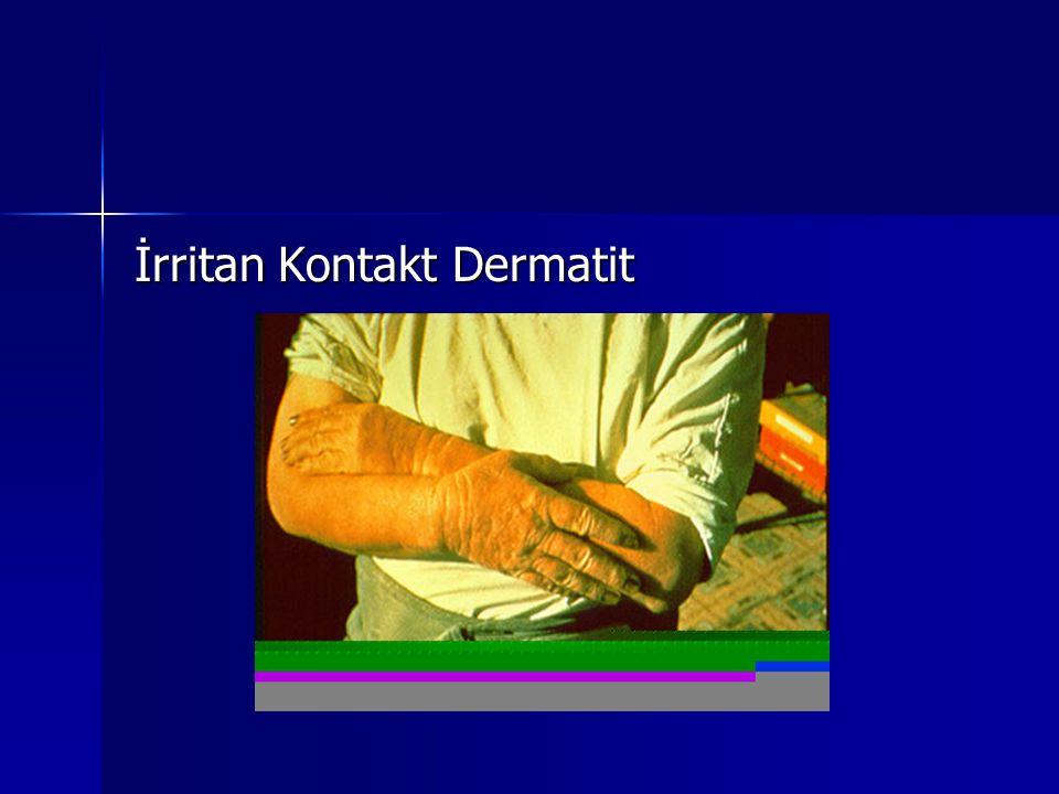 İrritan Kontakt Dermatit