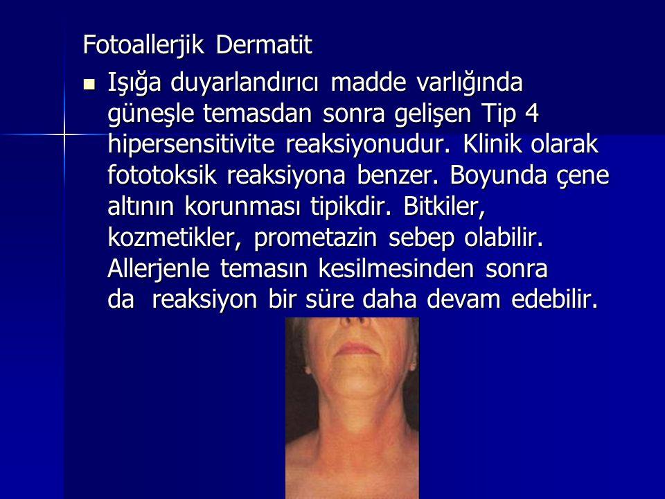 Fotoallerjik Dermatit