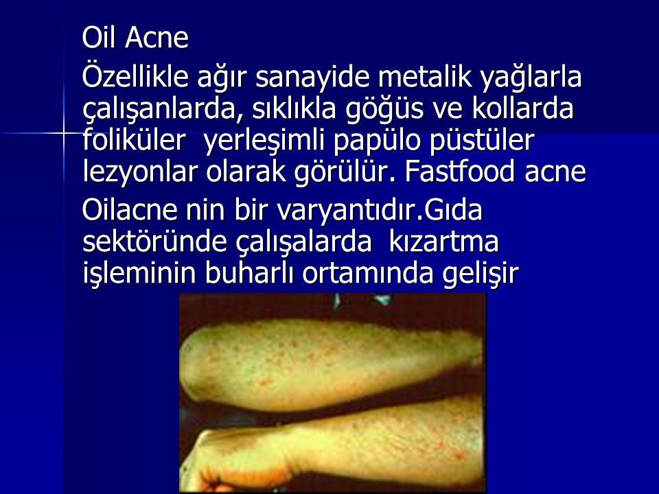 Oil Acne