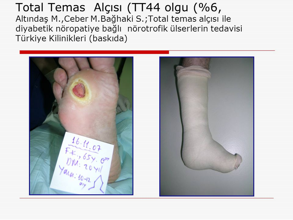 Total Temas Alçısı (TT44 olgu (%6, Altındaş M. ,Ceber M. Bağhaki S
