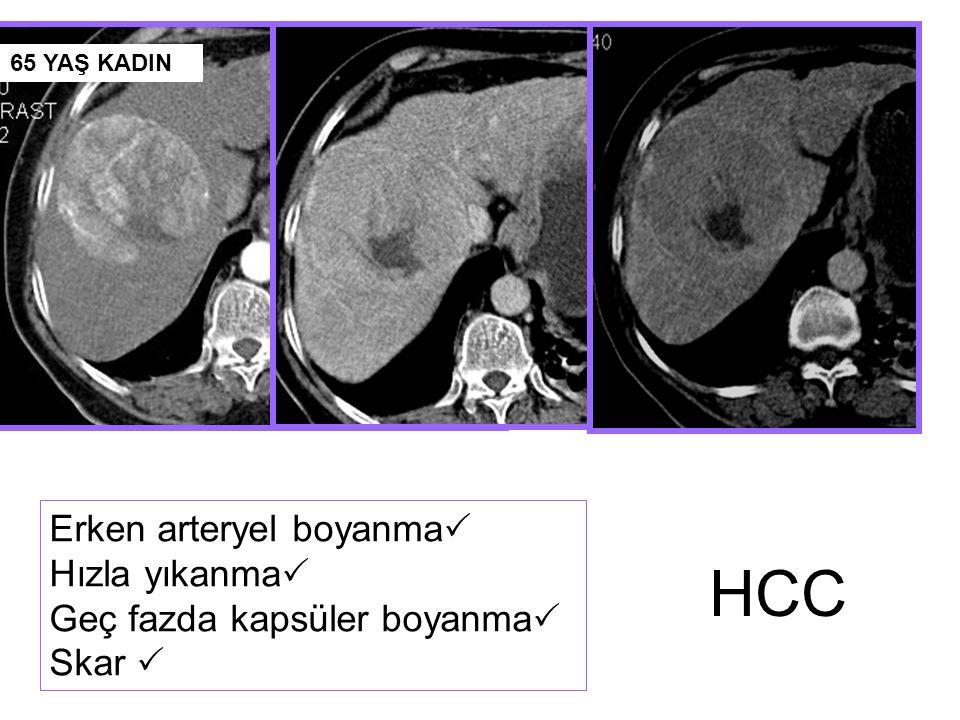 HCC Erken arteryel boyanma Hızla yıkanma Geç fazda kapsüler boyanma