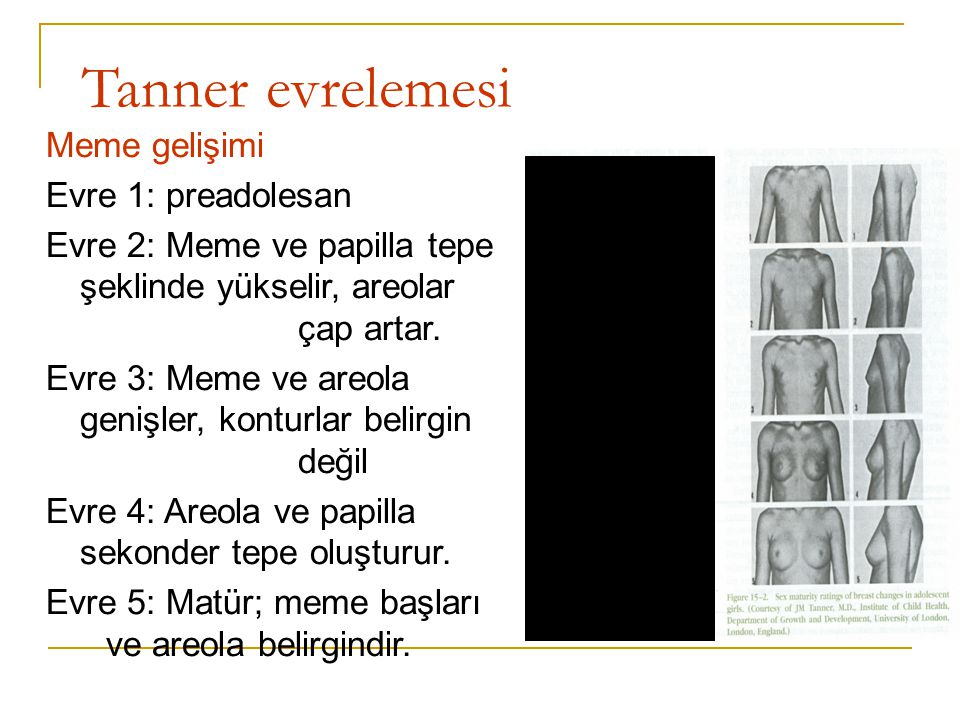 Tanner evrelemesi Meme gelişimi Evre 1: preadolesan