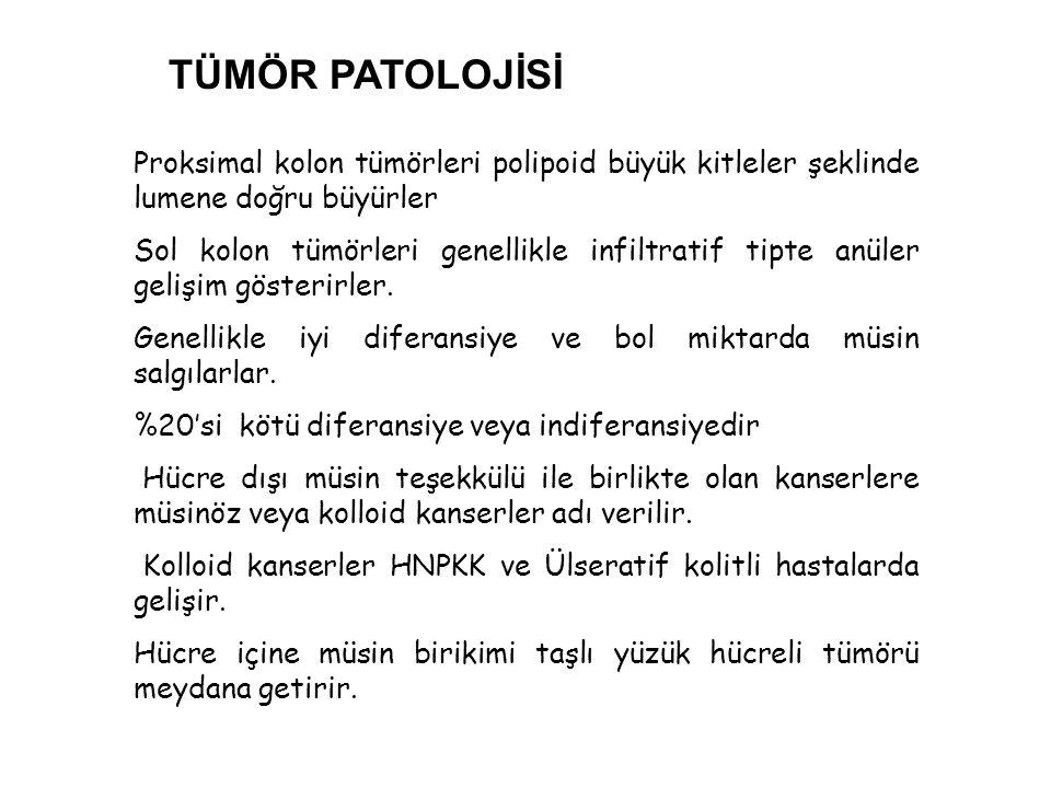 TÜMÖR PATOLOJİSİ Proksimal kolon tümörleri polipoid büyük kitleler şeklinde lumene doğru büyürler.