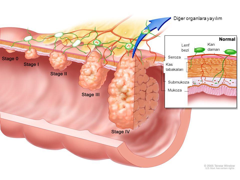 Diğer organlara yayılım