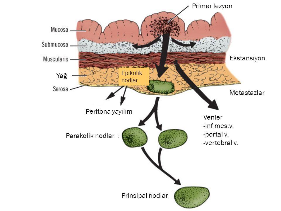 Primer lezyon Ekstansiyon Yağ Metastazlar Peritona yayılım Venler