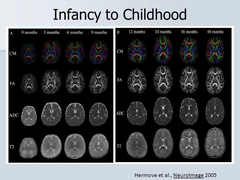 Infancy to Childhood Hermove et al., NeuroImage 2005