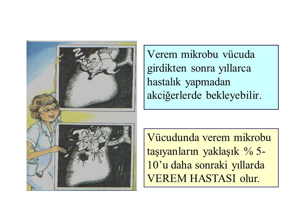 Verem mikrobu vücuda girdikten sonra yıllarca. hastalık yapmadan. akciğerlerde bekleyebilir.