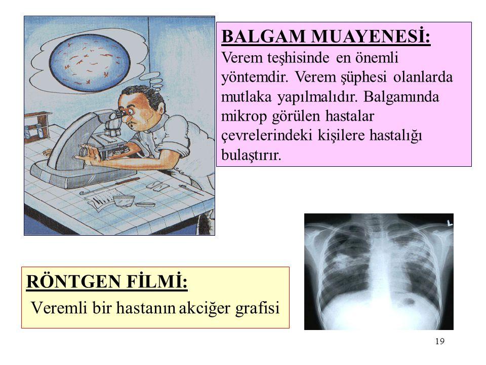 Veremli bir hastanın akciğer grafisi