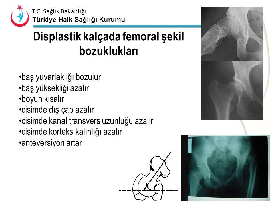Displastik kalçada femoral şekil bozuklukları