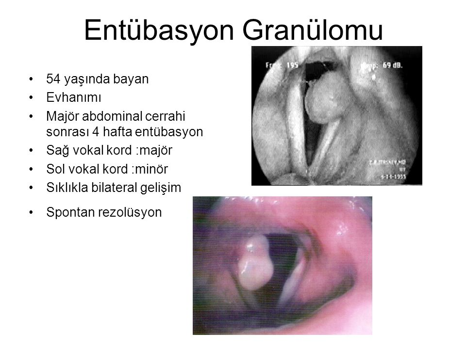 Entübasyon Granülomu 54 yaşında bayan Evhanımı
