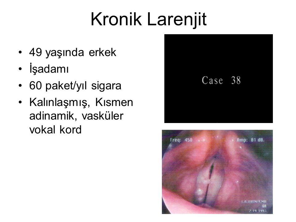 Kronik Larenjit 49 yaşında erkek İşadamı 60 paket/yıl sigara