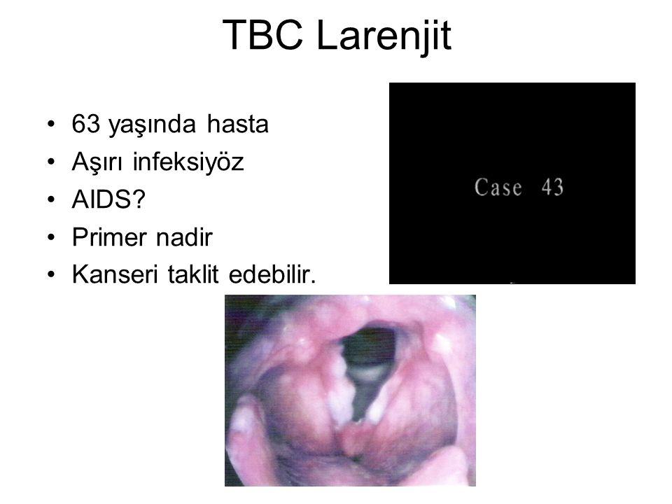 TBC Larenjit 63 yaşında hasta Aşırı infeksiyöz AIDS Primer nadir