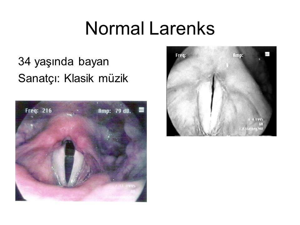 Normal Larenks 34 yaşında bayan Sanatçı: Klasik müzik