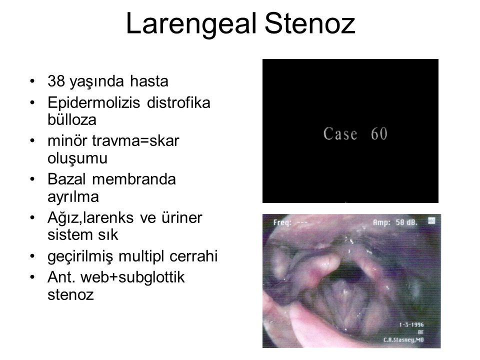 Larengeal Stenoz 38 yaşında hasta Epidermolizis distrofika bülloza