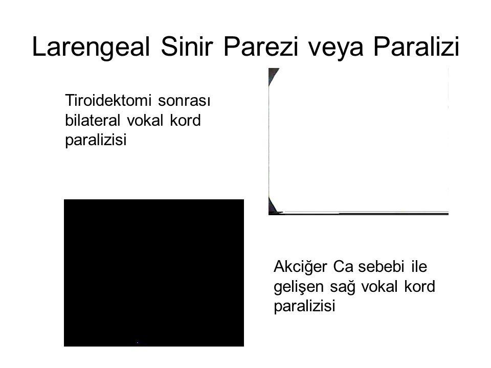 Larengeal Sinir Parezi veya Paralizi
