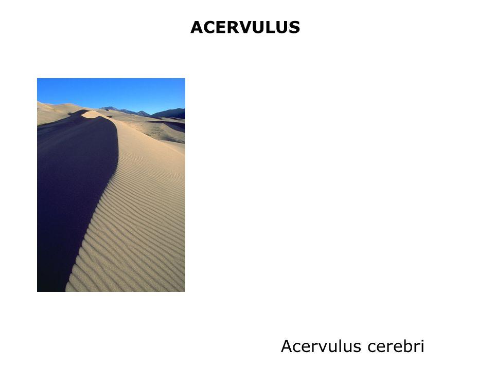 ACERVULUS Acervulus cerebri
