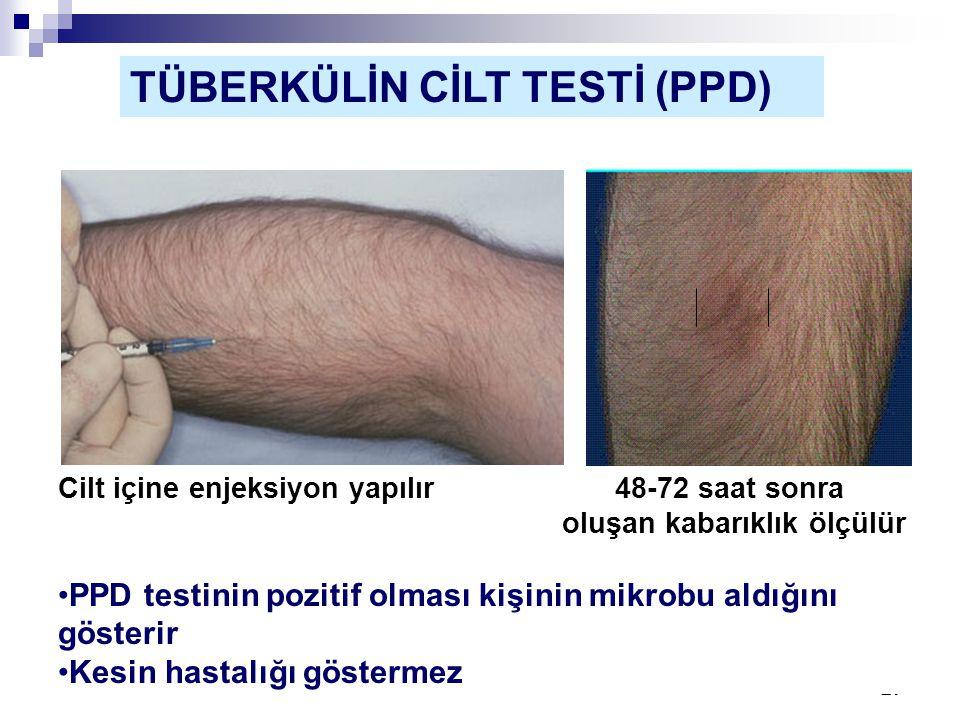 TÜBERKÜLİN CİLT TESTİ (PPD)