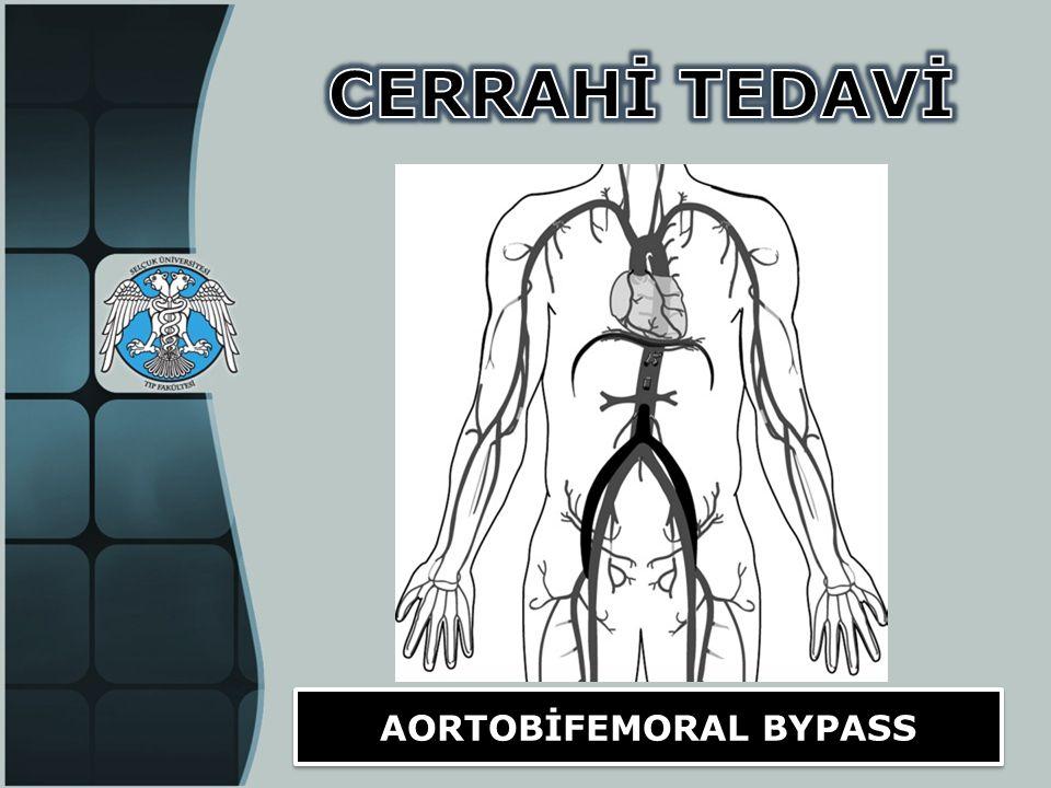 AORTOBİFEMORAL BYPASS